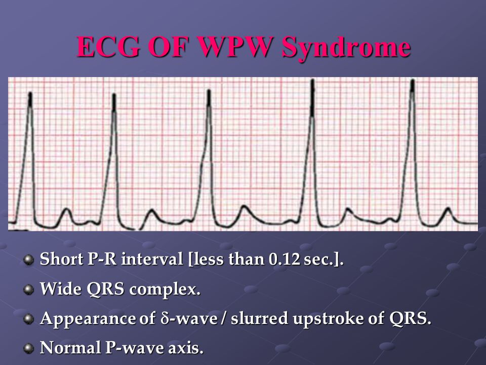 ECG OF WPW Syndrome Short P-R interval [less than 0.12 sec.].